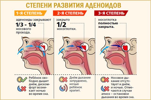 Степени развития аденоидов