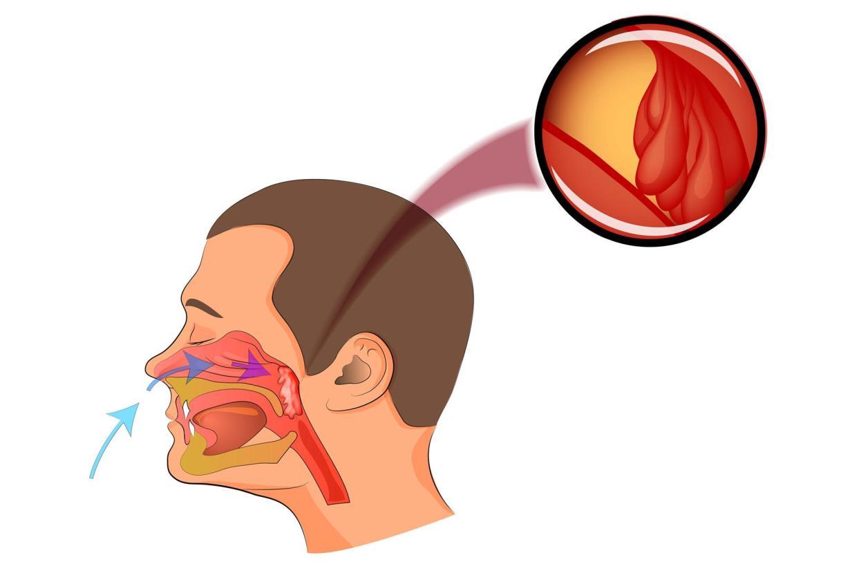 Аденоидит (воспаление аденоидов)