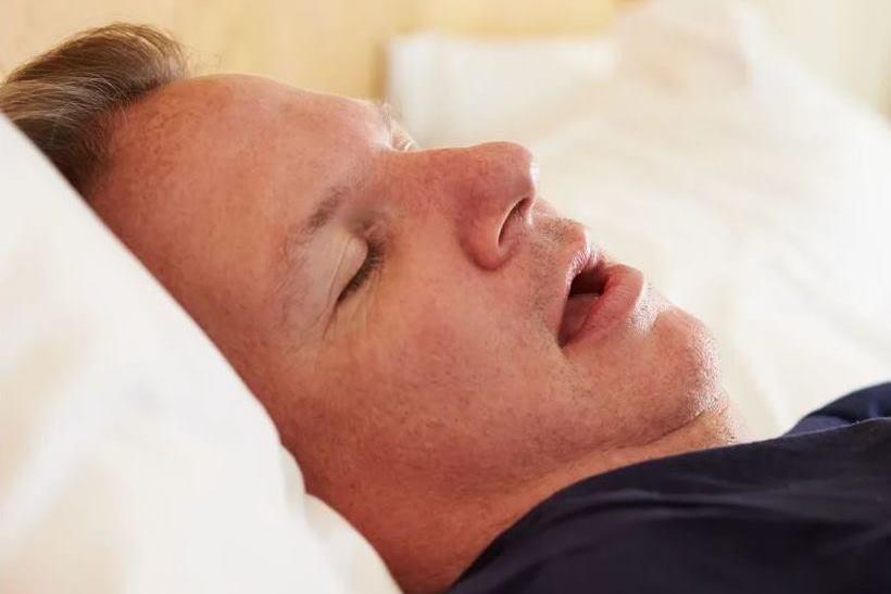 Синдром обструктивного апноэ сна (СОАС)