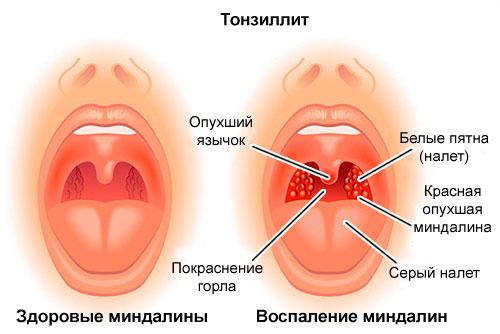 Как проявляется тонзиллит